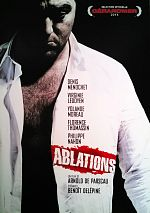 Ablations - FRENCH DVDRip